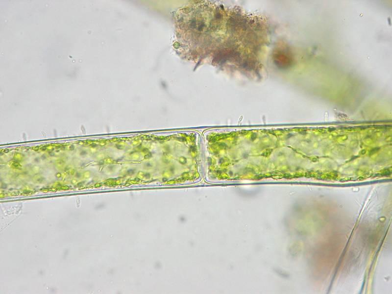Žabí vlas (lat. Cladophora) - vlákno pod mikroskopom