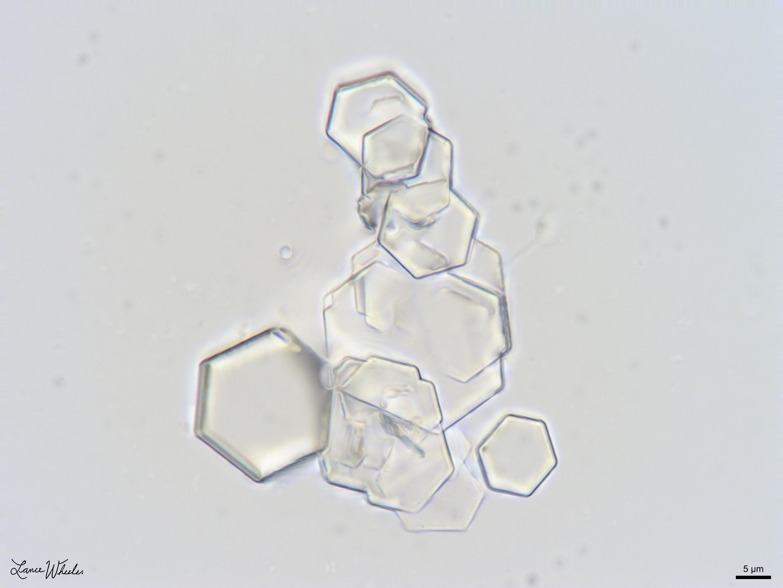 Cystinuria - Wikipedia
