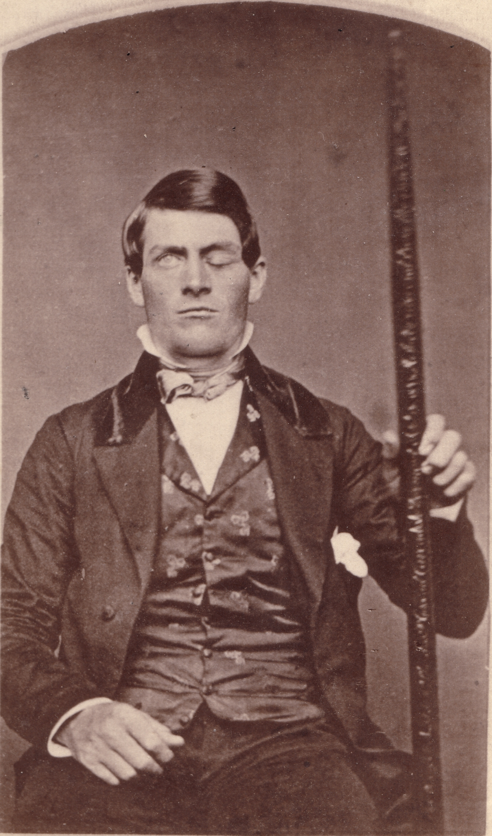 File:Phineas Gage GageMillerPhoto2010-02-17 Unretouched Color Cropped ...