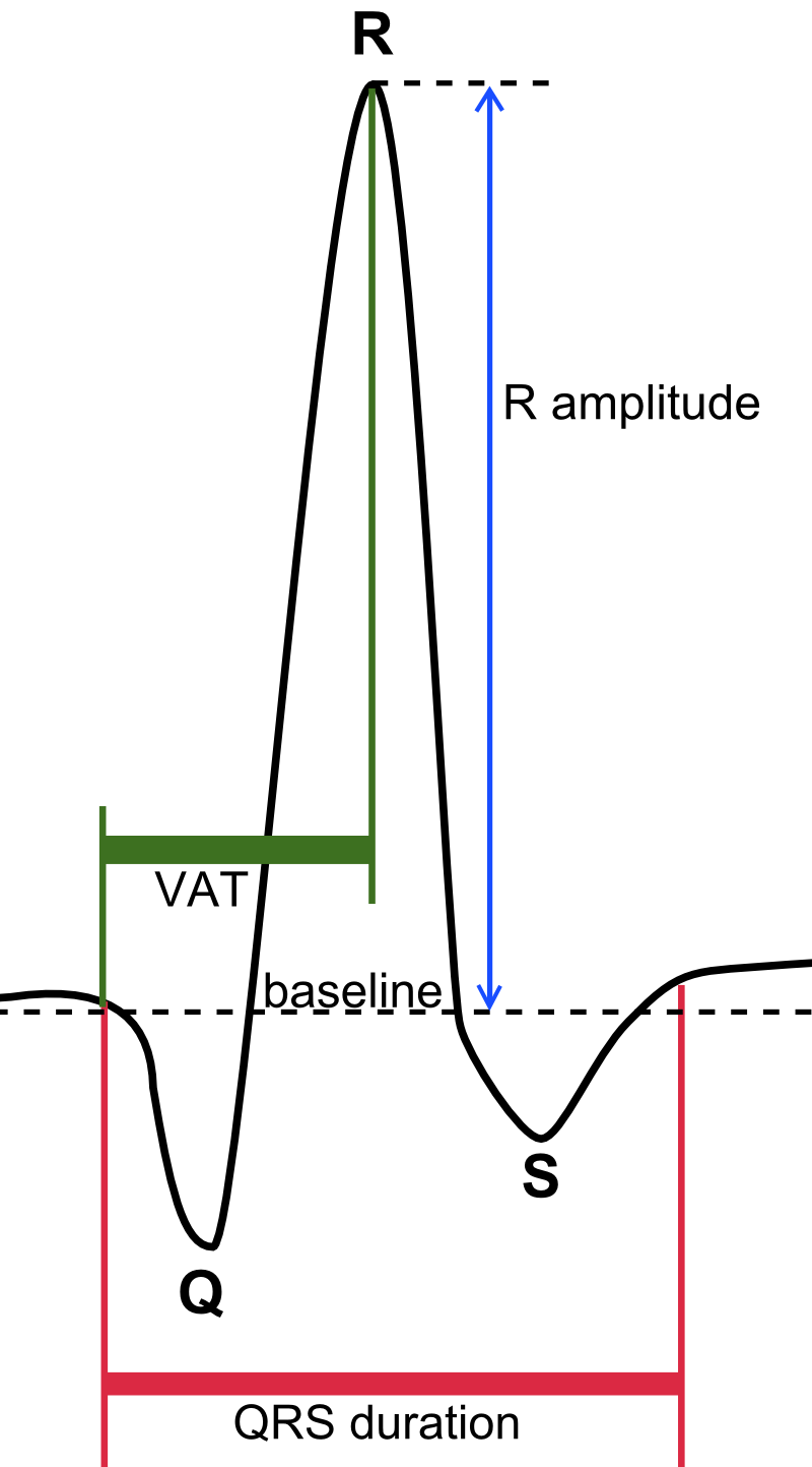 qrs complex wikiwand
