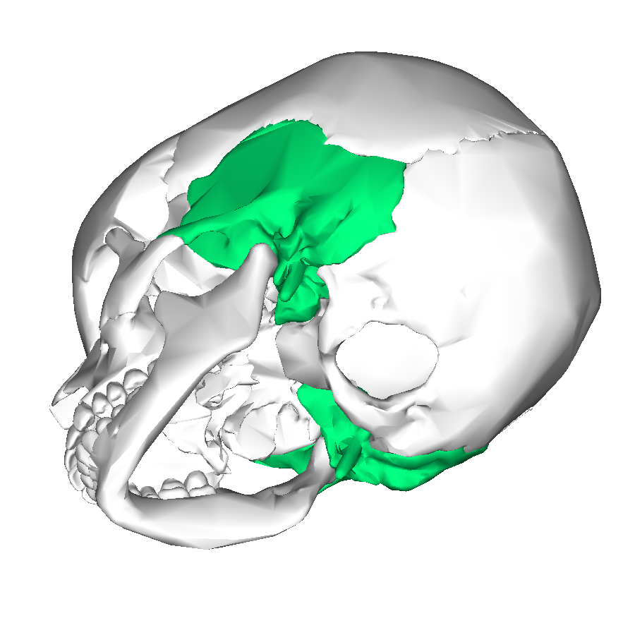File:Temporal bone lateral4.png - Wikimedia Commons Temporal Bone