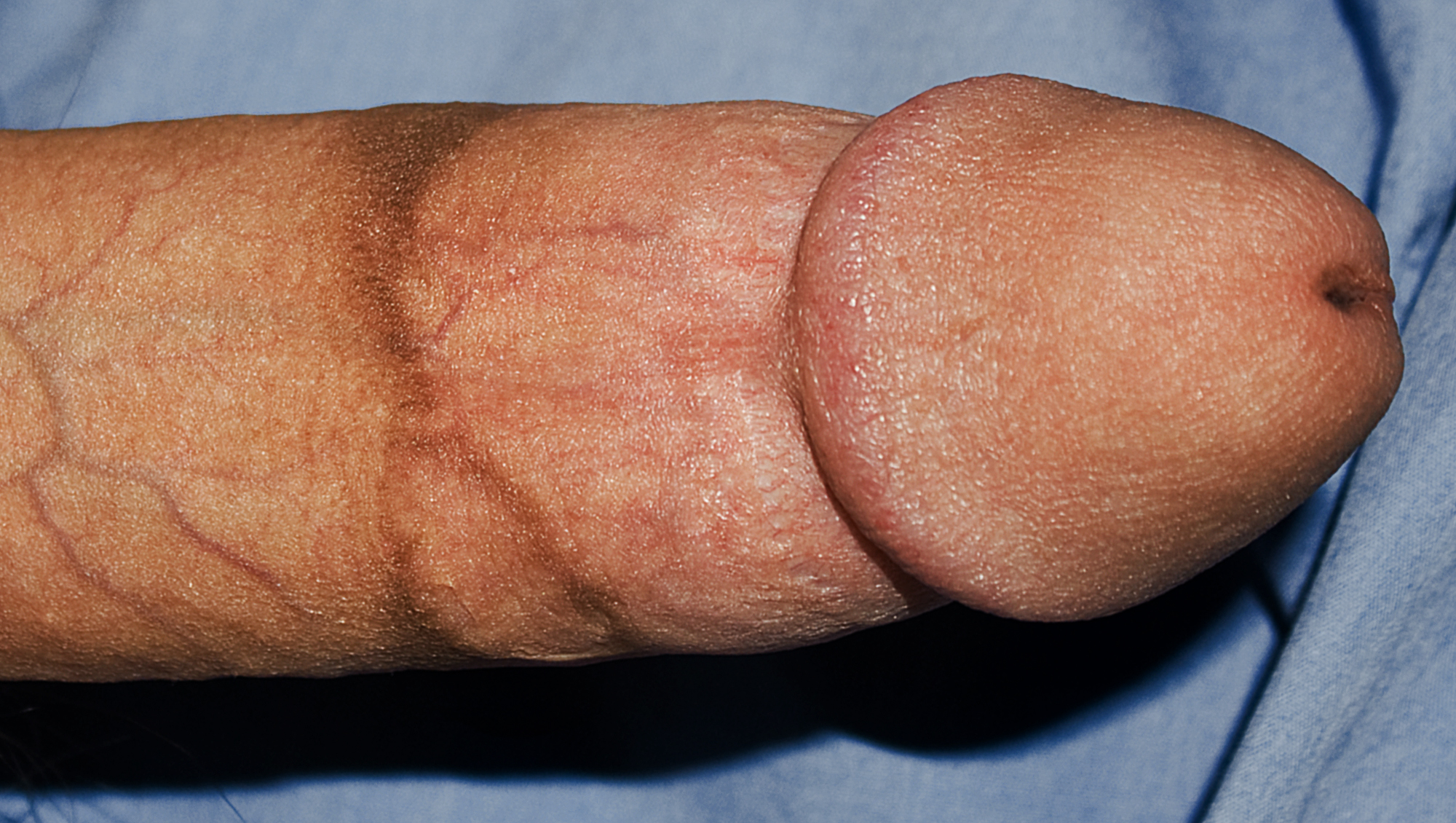 This image got me wondering, how big does your penis have to be for you to die of an erection