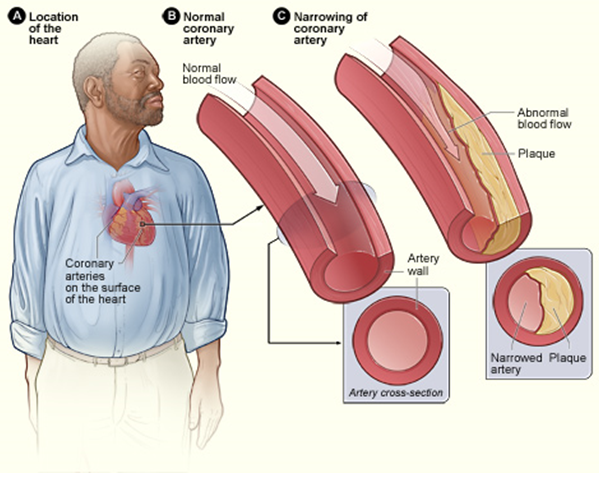 the clinical description of coronary heart disease Treatment[edit] there are a number of treatment options for coronary artery  disease: lifestyle changes medical treatment – drugs.