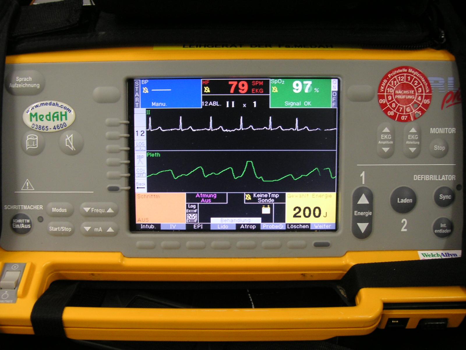 File:Defibrillator Monitor Closeup jpg - Wikimedia Commons