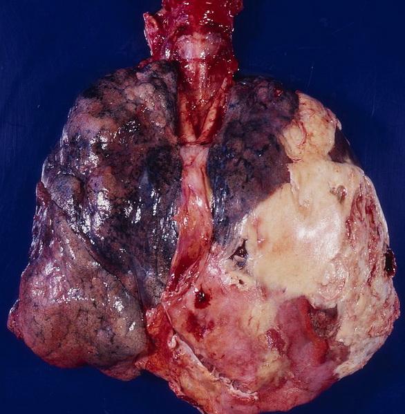 Image Result For Symptoms