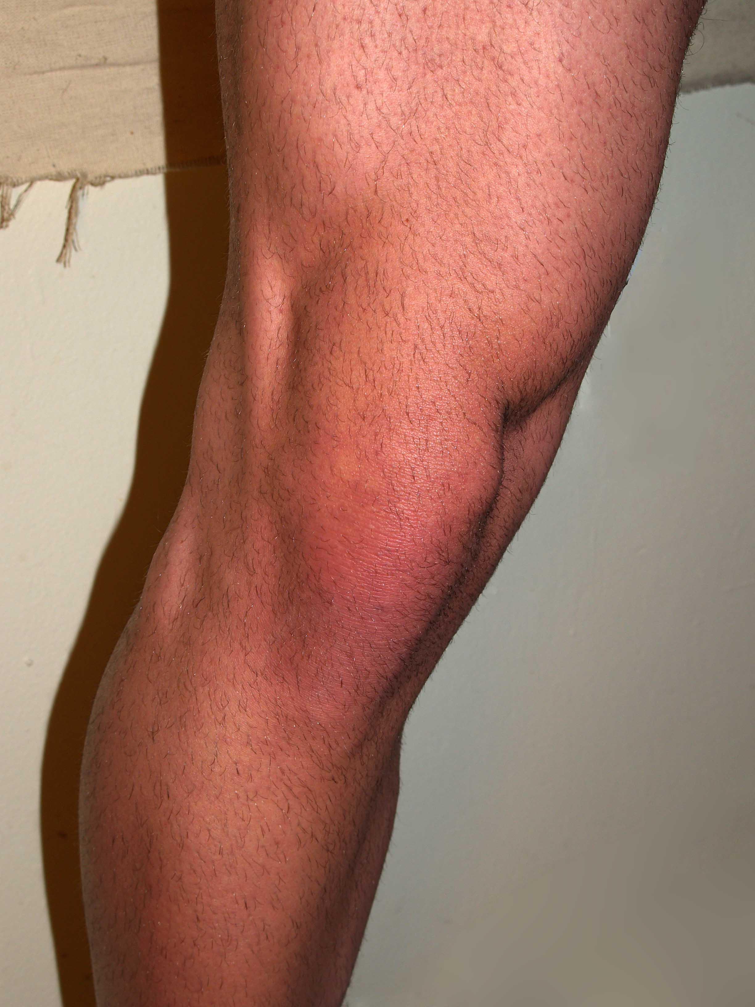 Ejercicios de rehabilitación de rodilla, muslo e isquiotibiales