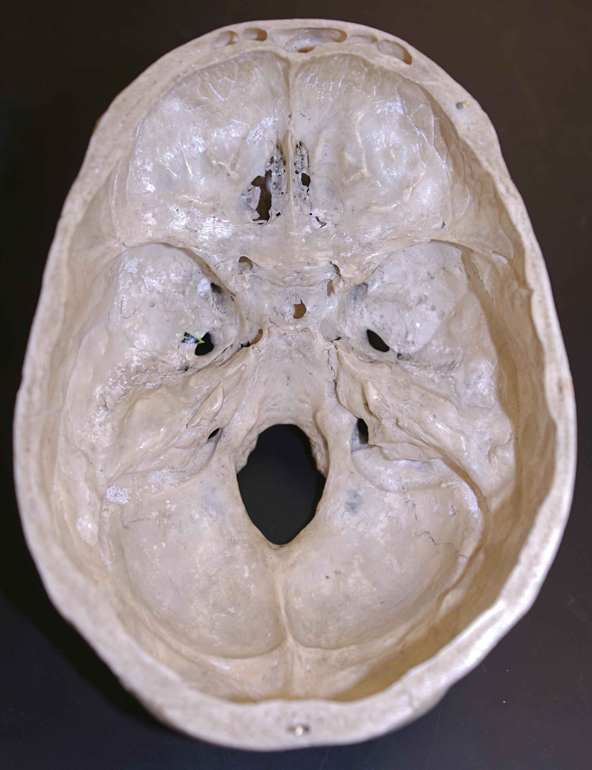 Basilar Skull Ring Fracture