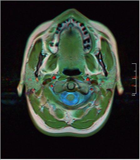 Brain MRI 0053 20.jpg