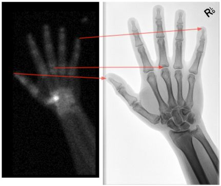 Image Gallery Nuclear Bone Scan