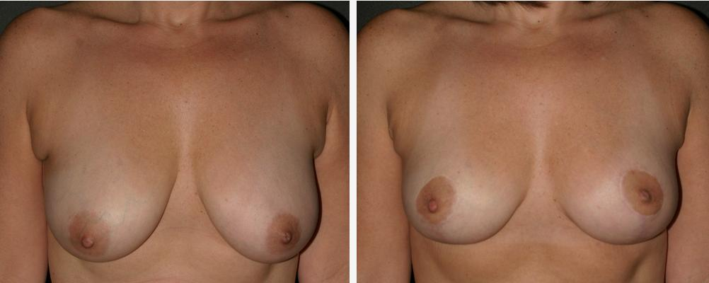 Breast reduction procedure, courtesy Wikipedia