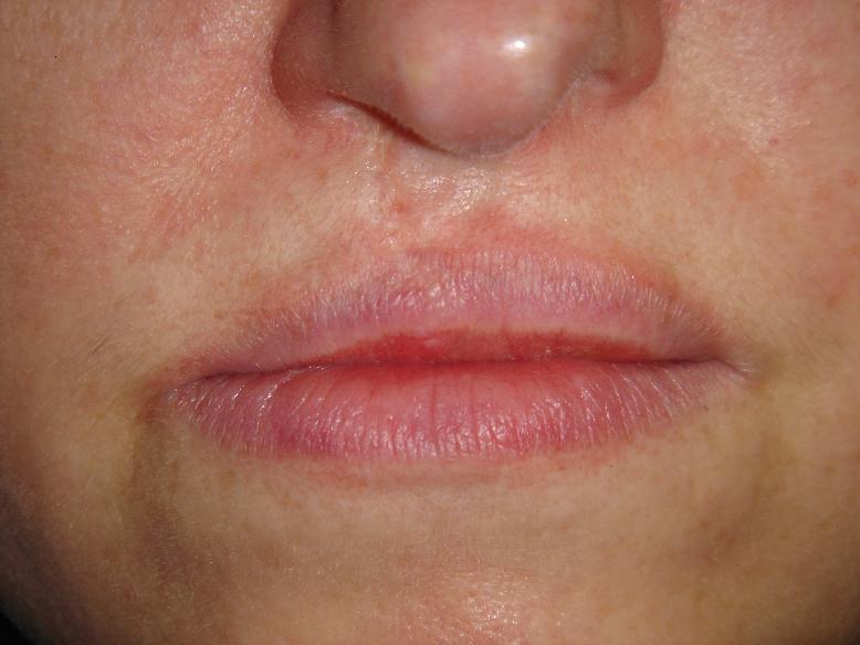 Permanent Upper Lip Hair Removal Naturally