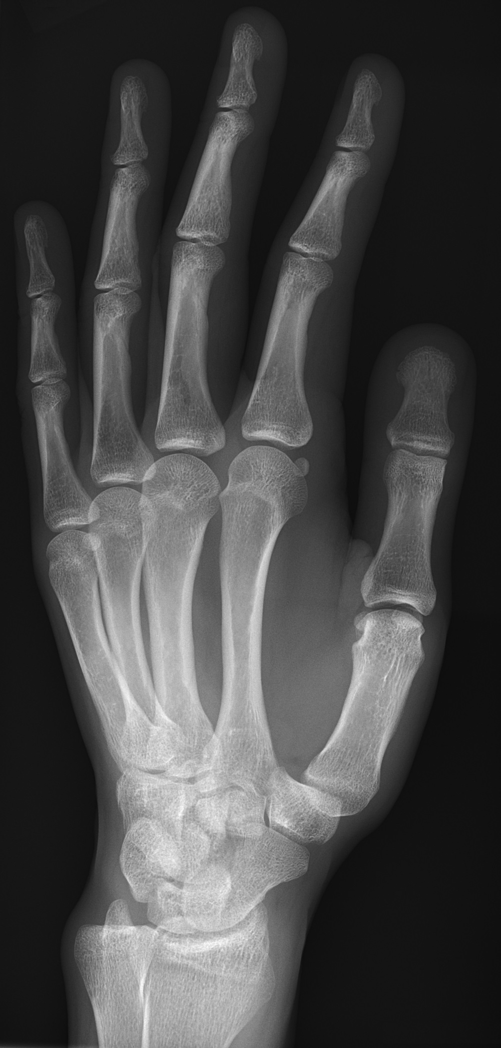 File:X-ray of normal hand by oblique projection.jpg - Wikimedia Commons