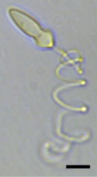 A light micrograph of a bullet-shaped cell with a large spiral filament (the extruded nematocyst).