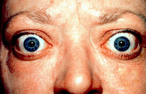 Proptosis And Lid Retraction From Graves Disease Jpg