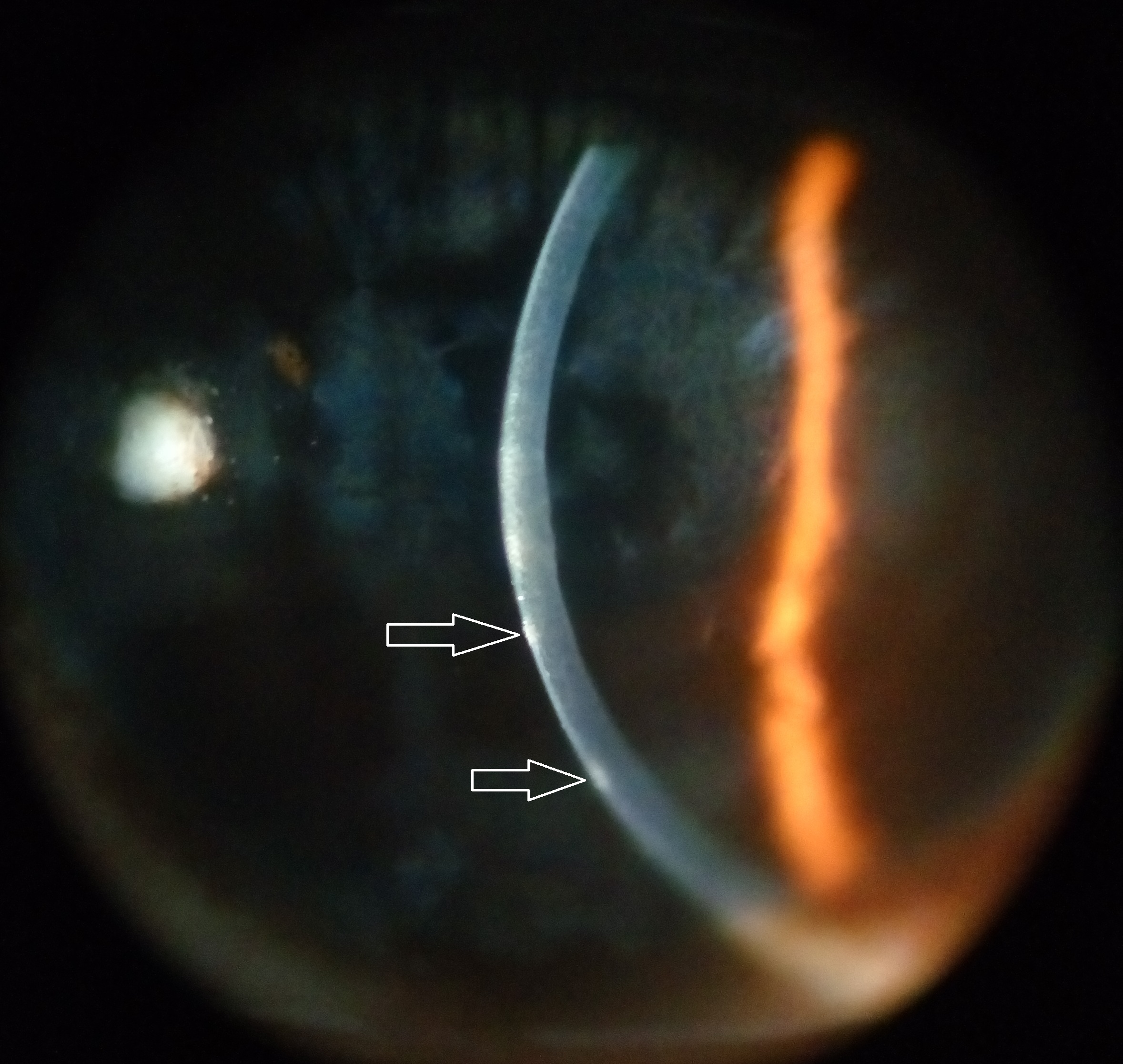 File Subepithelial Corneal Infiltrates Jpg Wikimedia Commons