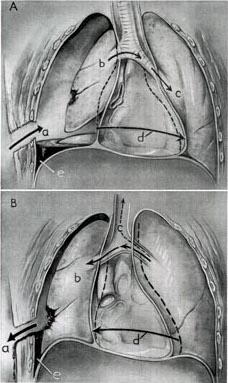 File:Sucking chest wound mechanics.jpg