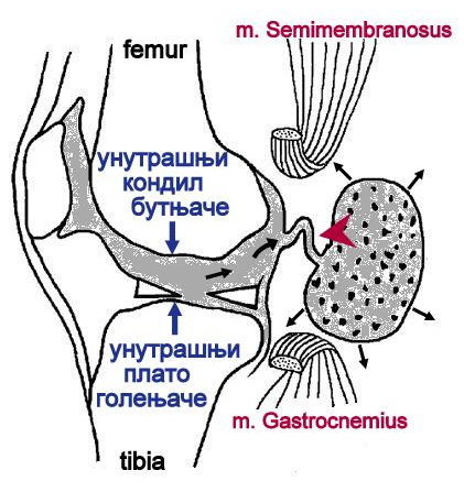 File:Valvular mechanism of Baker cyst.png - Wikimedia Commons