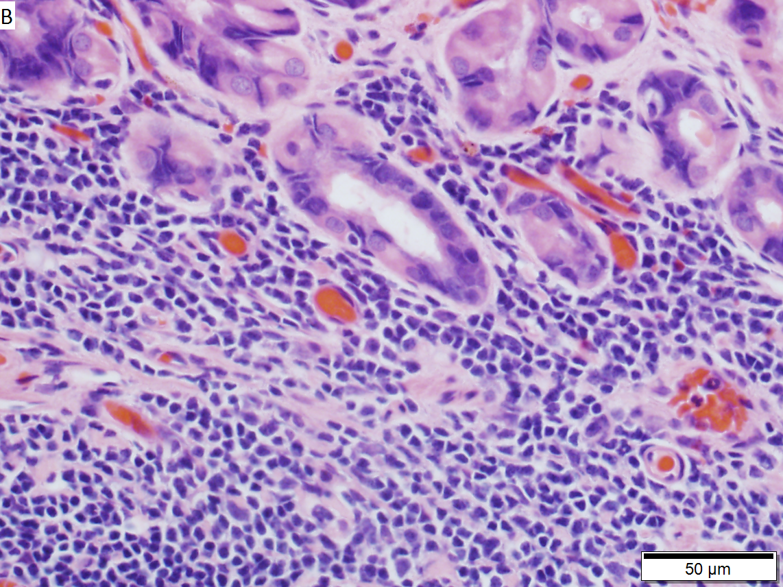 MALT lymphoma of stomach