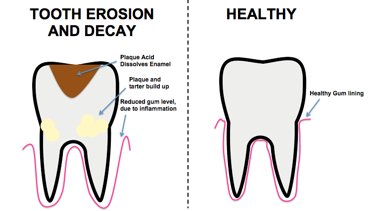 Filediagram Of Tooth Erosiong Wikimedia Commons