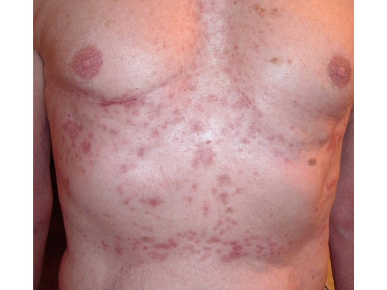 sjogren's syndrome caused by steroids