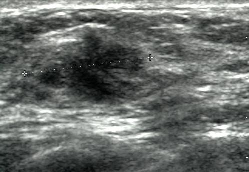Breast ultrasound - Wikipedia