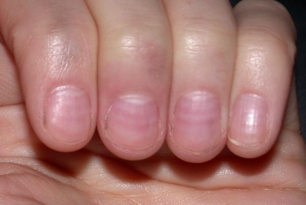 Fingernails on small indents Slide show: