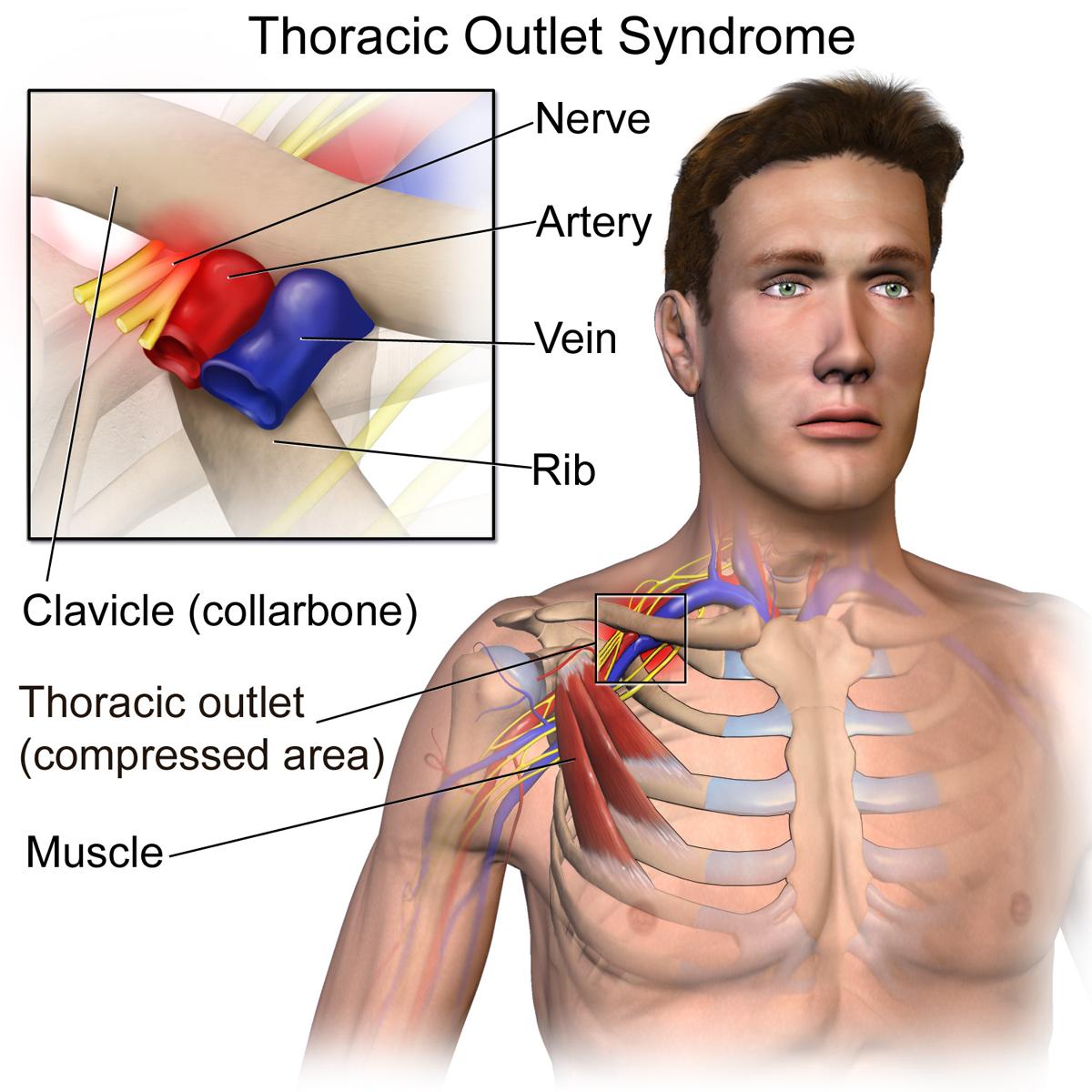 Het thoracic outlet syndrome TOS heet ook wel schoudergordelsyndroom of neurovasculair compressiesyndroom is een verzamelnaam voor aandoeningen waarbij de