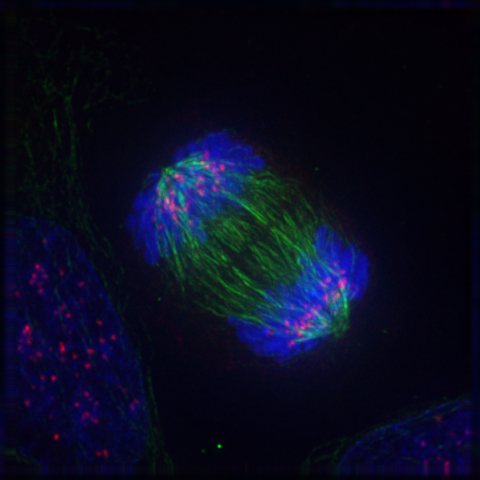 Anaphase IF Cancer – when good cells go bad.