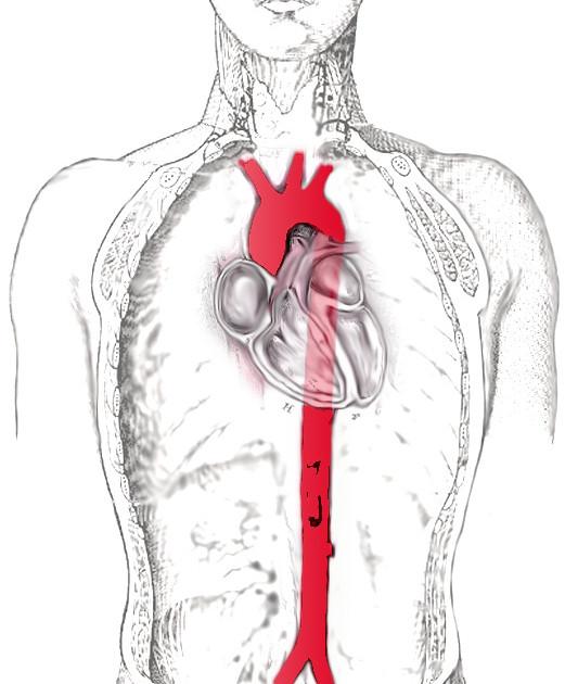 Aorta – Wikipedia