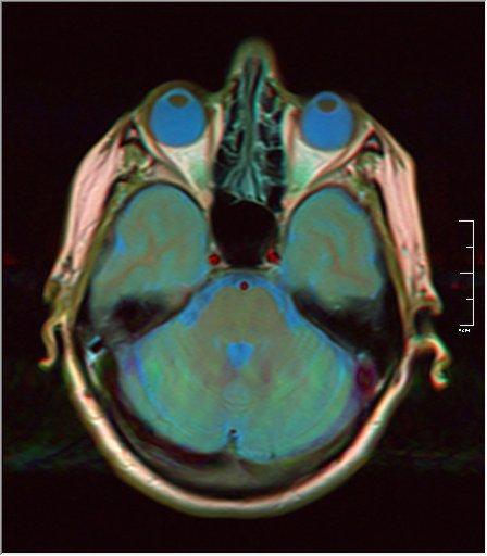Brain MRI 0076 14.jpg