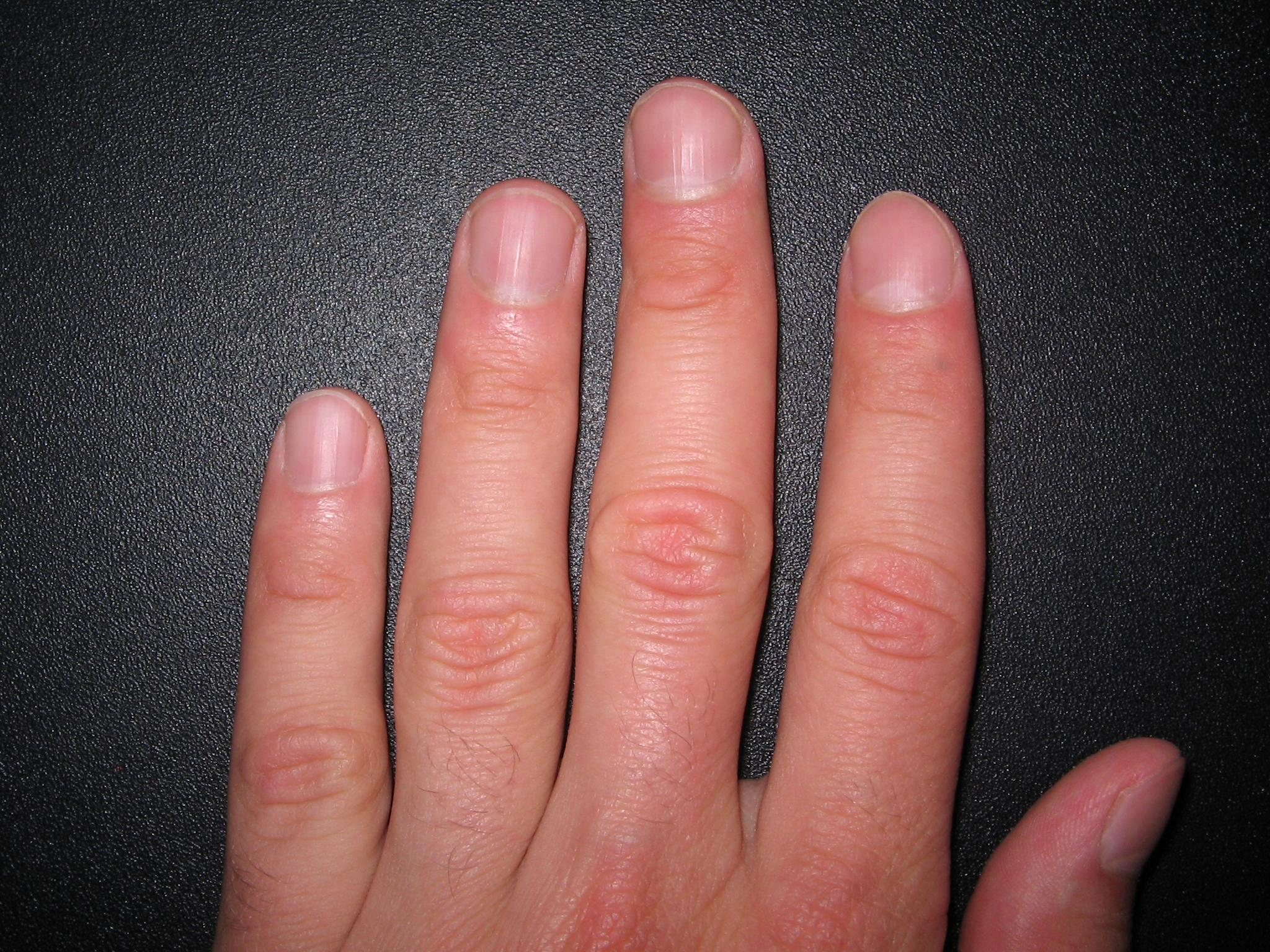 Fingernails 4 Background