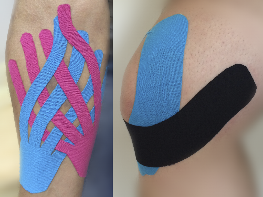 KinesioTaping.png Русский: Кинезиотейпирование Date 28 August 2014, 23:56:17 Source Own work Author Xlsergval