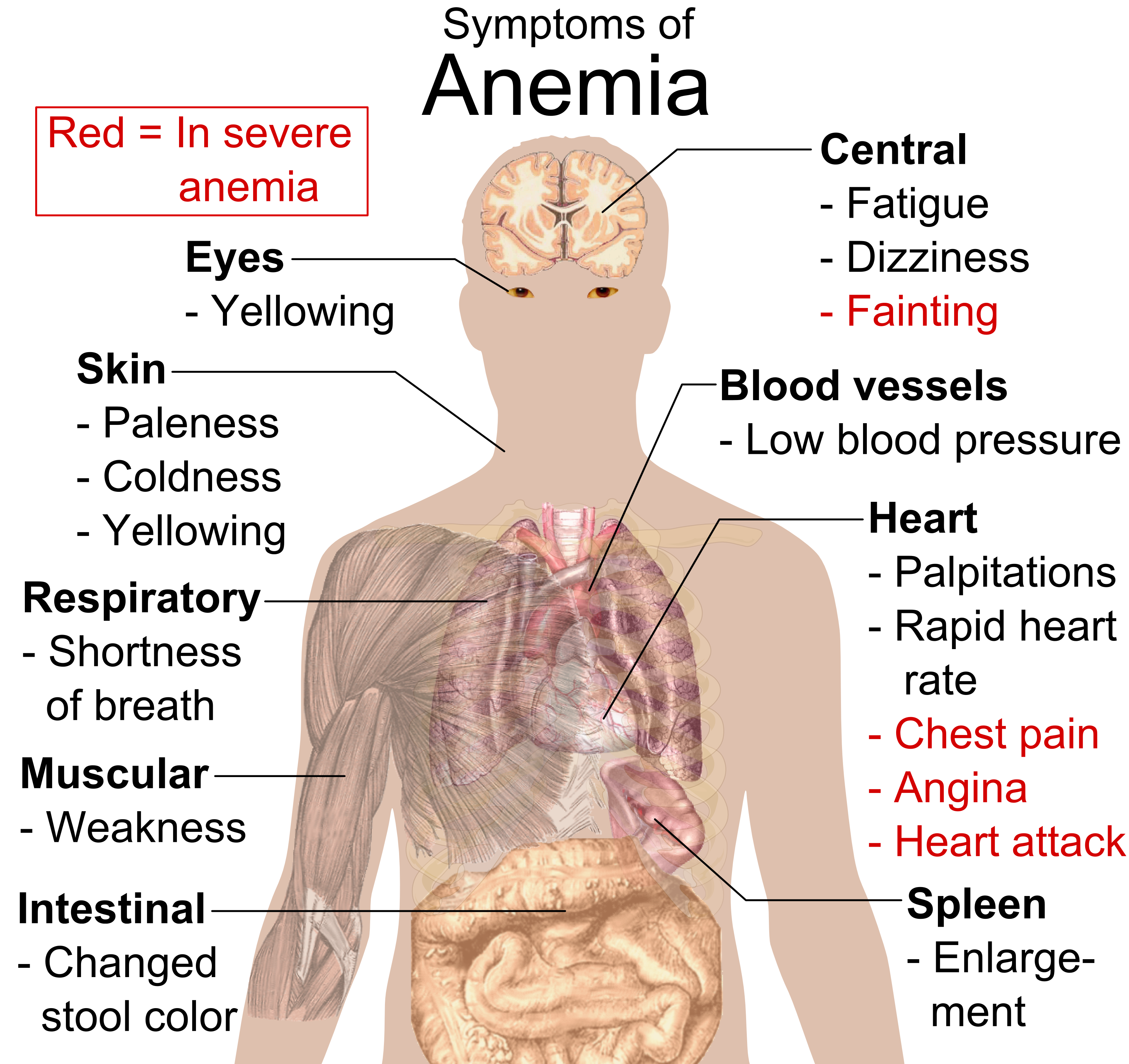 File:Symptoms of anemia png - Wikimedia Commons