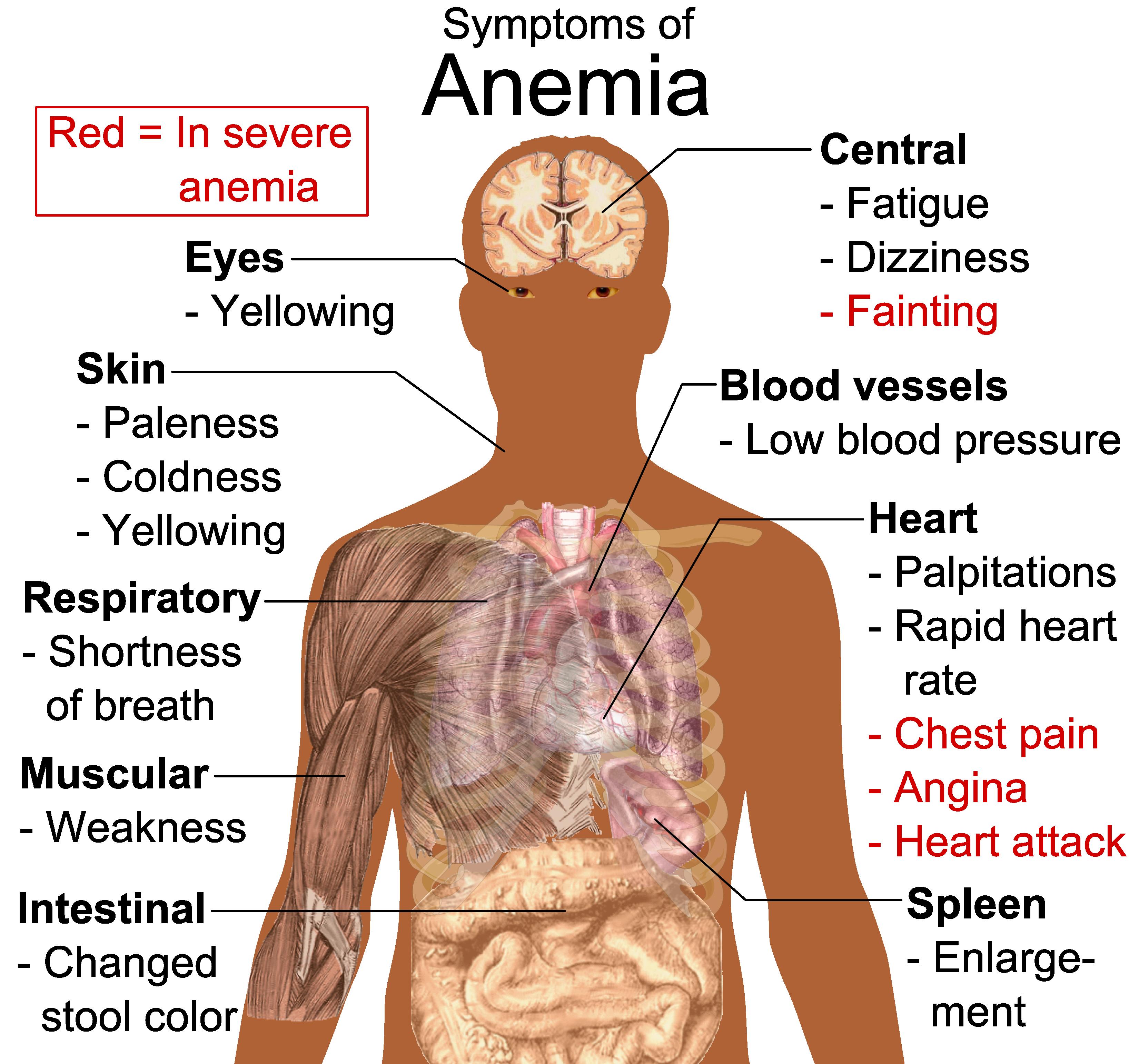 Filesymptoms Of Anemia Wikimedia Commons The Below Diagram Shows Basic Anatomy Human Eye