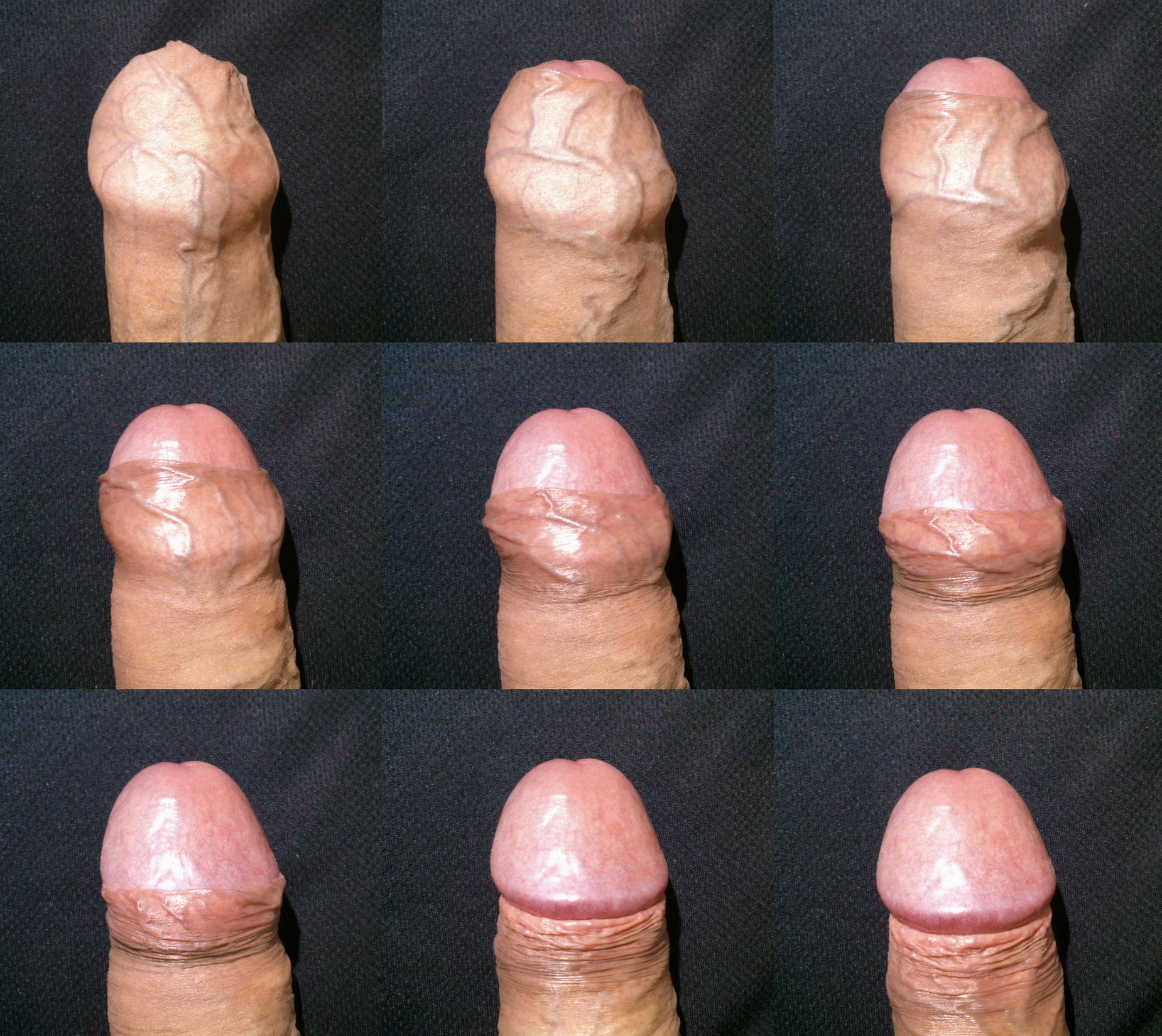 Masturbation forskin pulled back