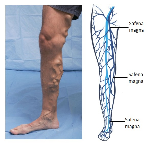 Varices pierna