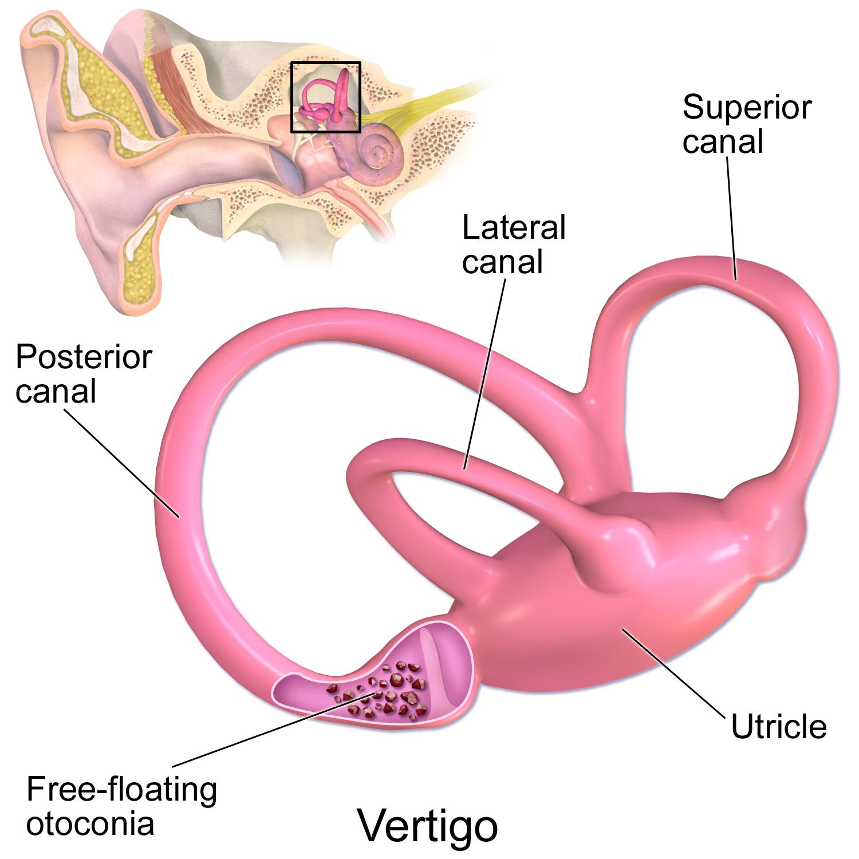 Causes of Vertigo