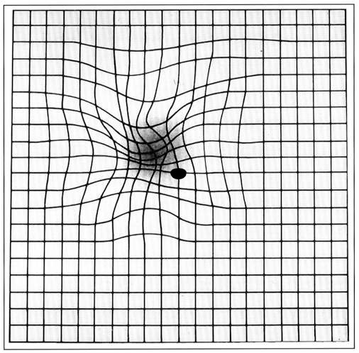 Amsler grid - age-related macular degeneration EC04