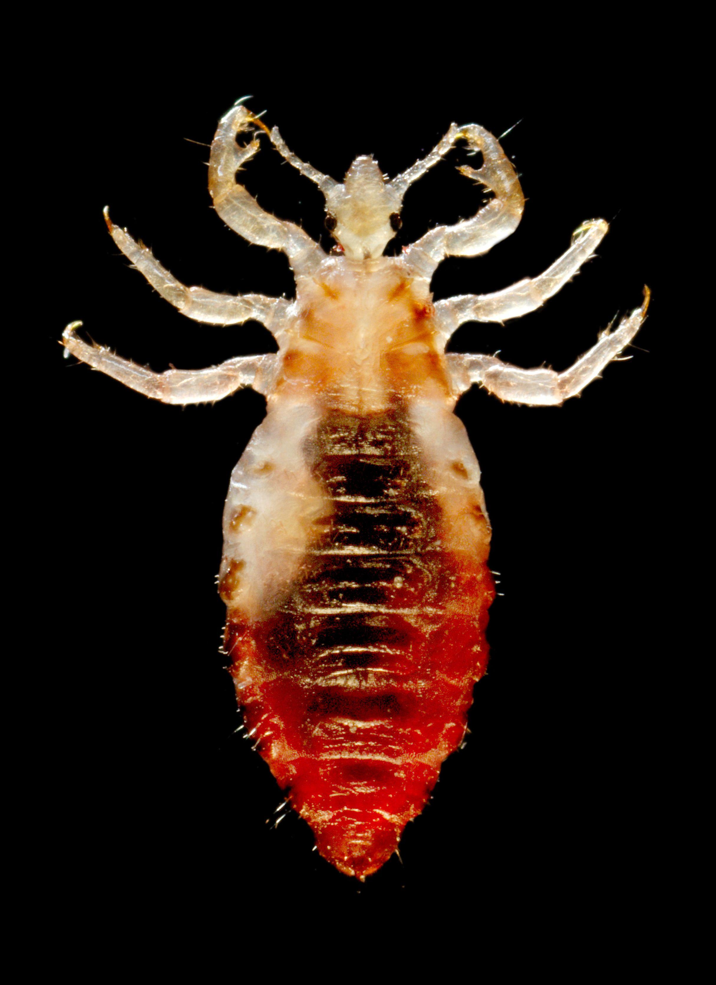 Body louse - Wikipedia