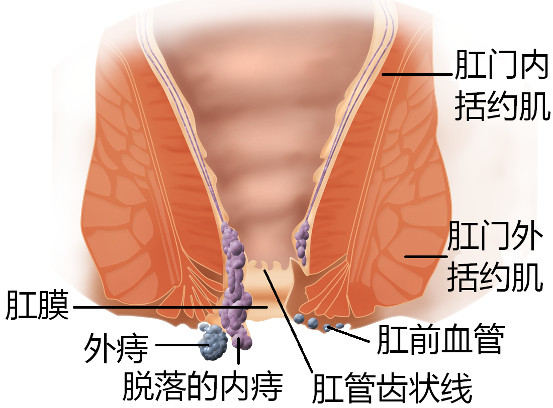 Hemorrhoid-zh.PNG