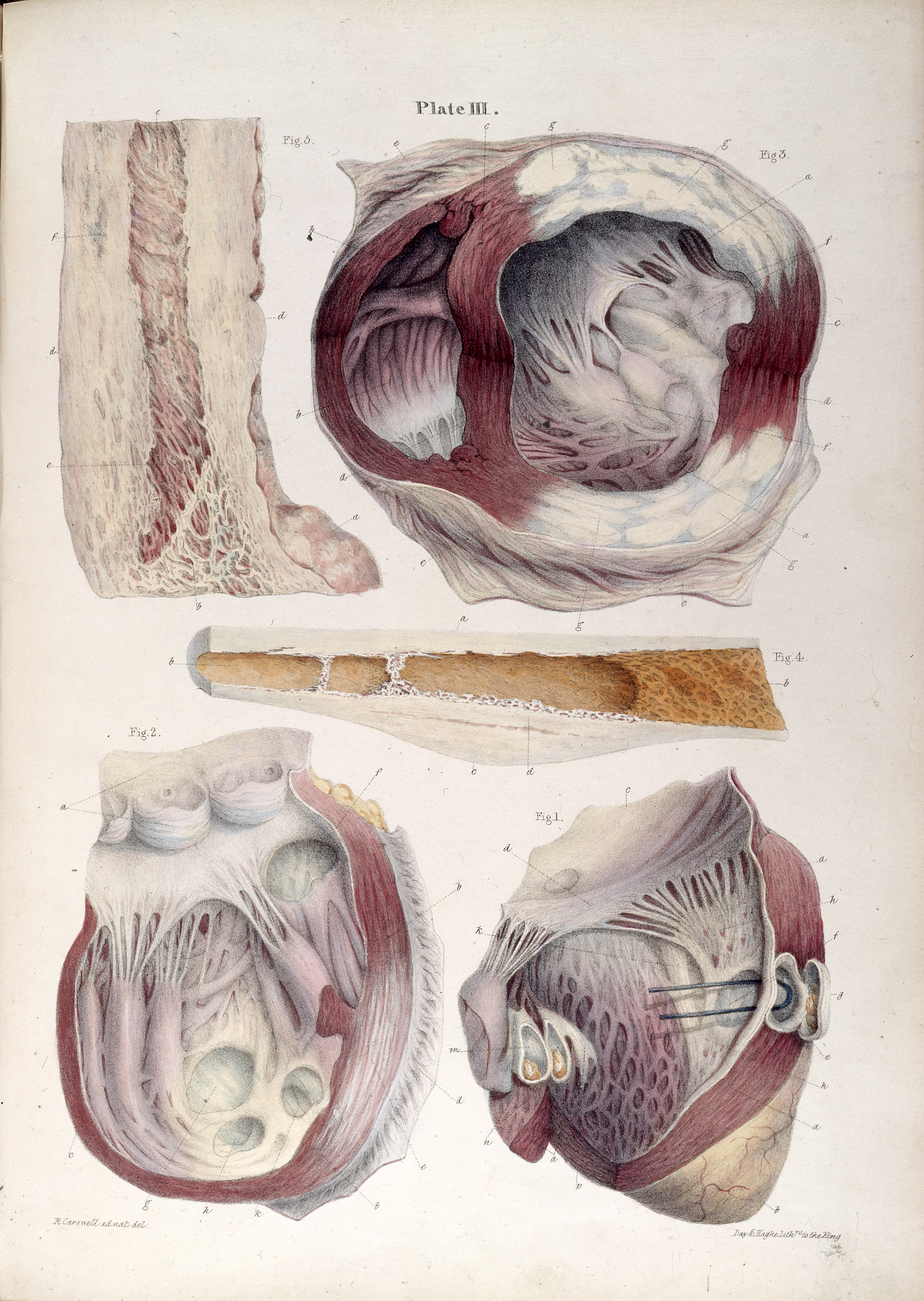 File:R. Carswell, Pathological Anatomy; heart Wellcome L0023653.jpg ...