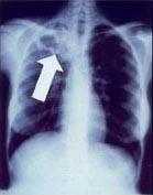 A tuberculose cria cavidades visíveis nas radiografias como esta, na parte superior do pulmão direito.