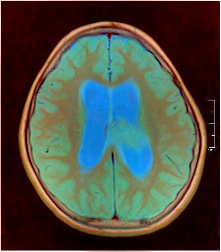 Brain MRI 0015 12.jpg