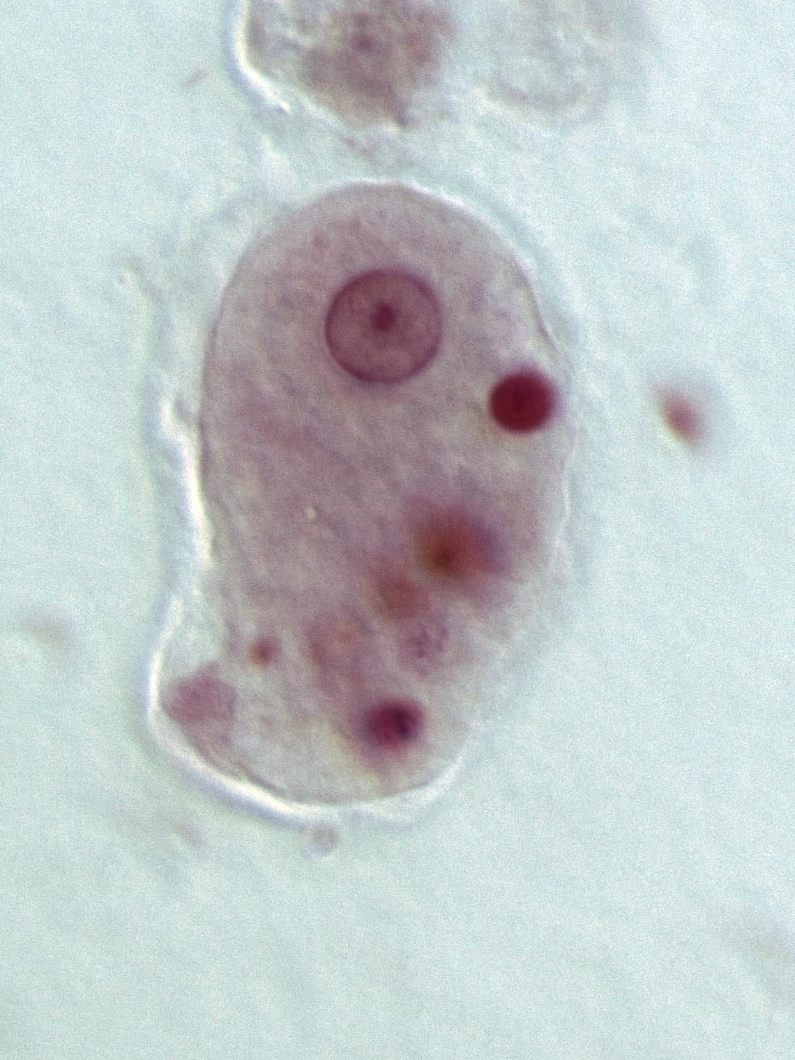 Entamoeba histolytica parasite