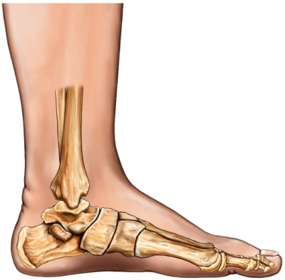 strained Achilles tendon cause - flat feet