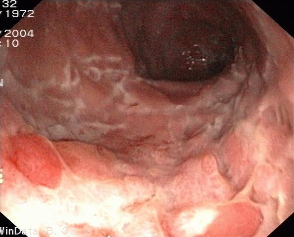 Untersuchung des Darms mittels Endoskopie
