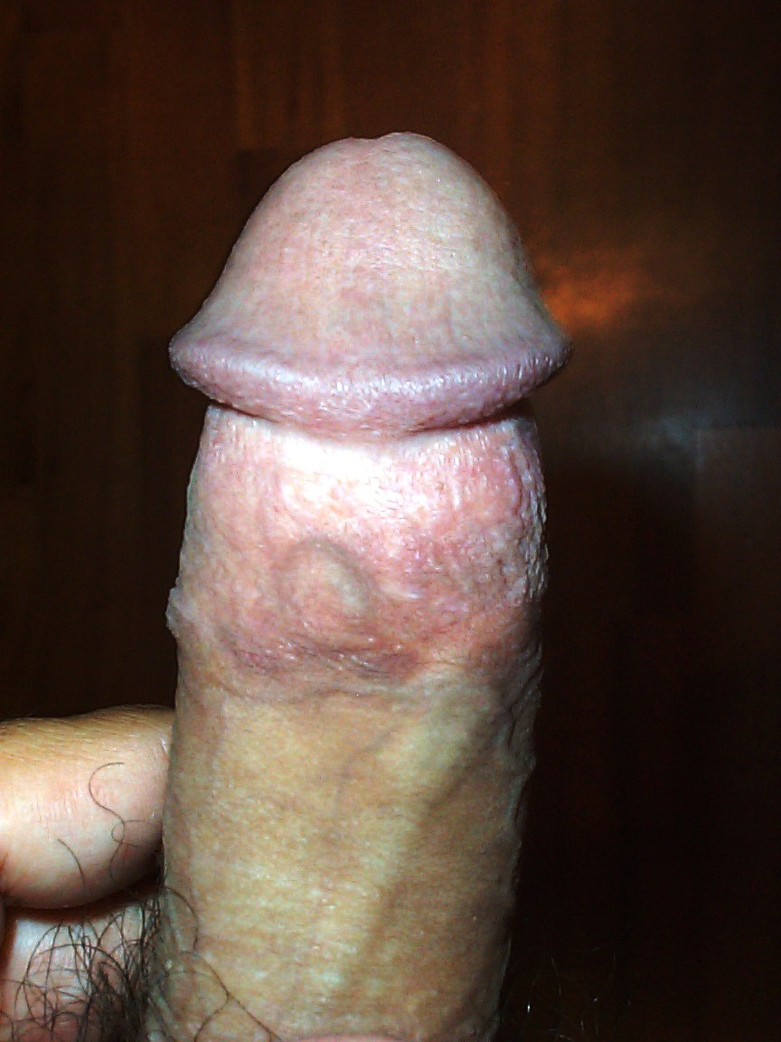 Circumcision scar on penis all clear