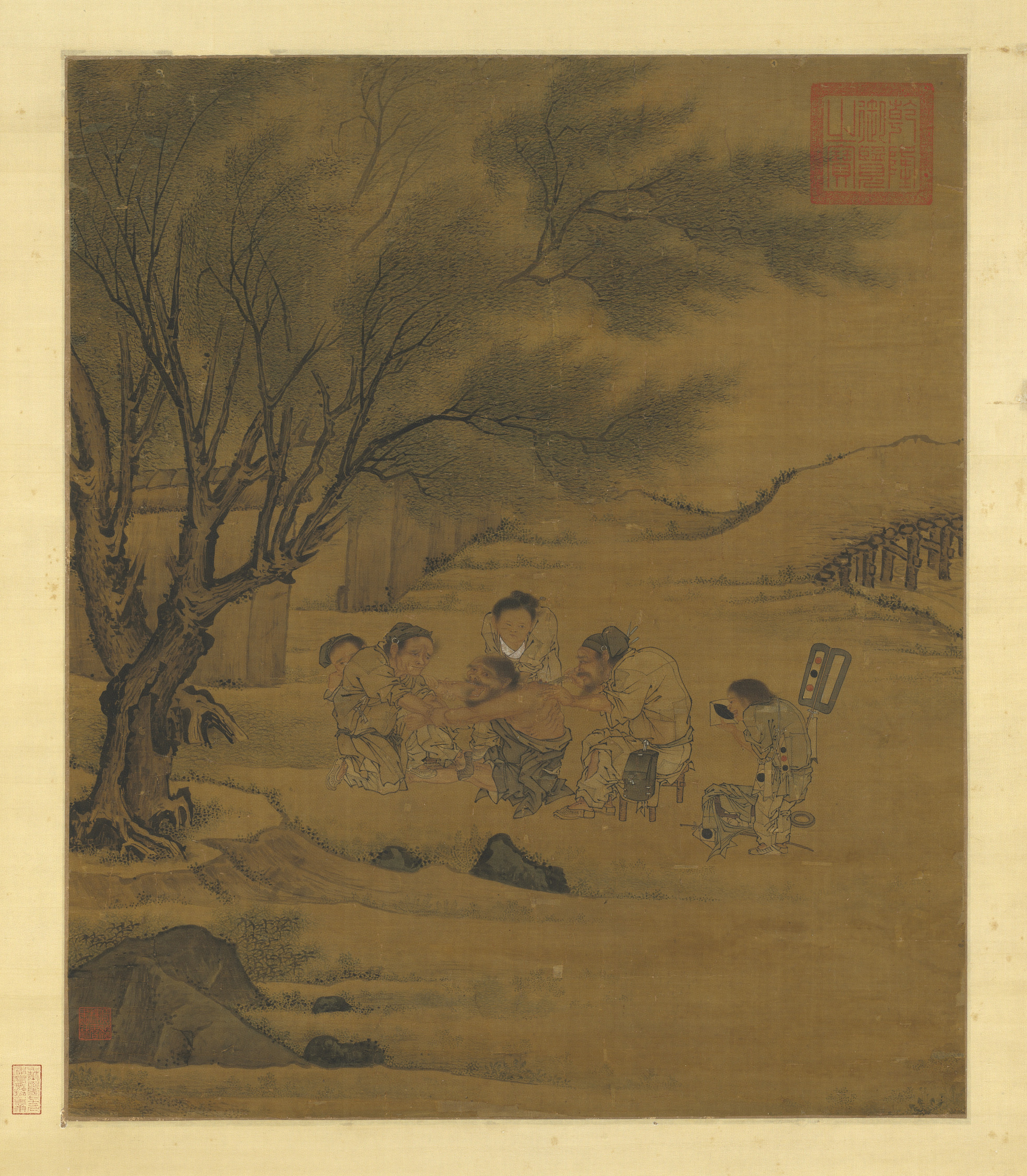 Moxibustion - Wikipedia Traditional Chinese Medicine