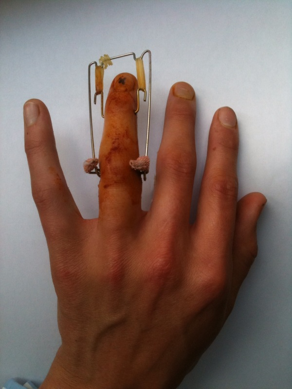 Broken Ring Finger Surgery