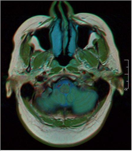Brain MRI 0133 18.jpg